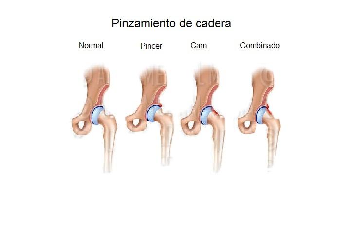 Pinzamiento de cadera - Dr. Julián Guerra